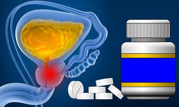 Противовоспалительные препараты при простатите