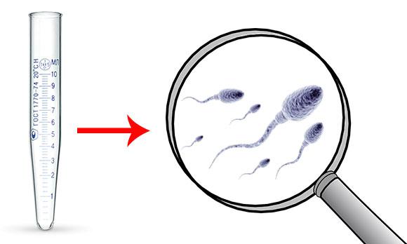 Сперма под лупой