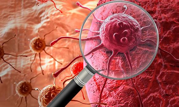 злокачественные клетки