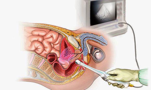 Что такое простата и как ее проверяют